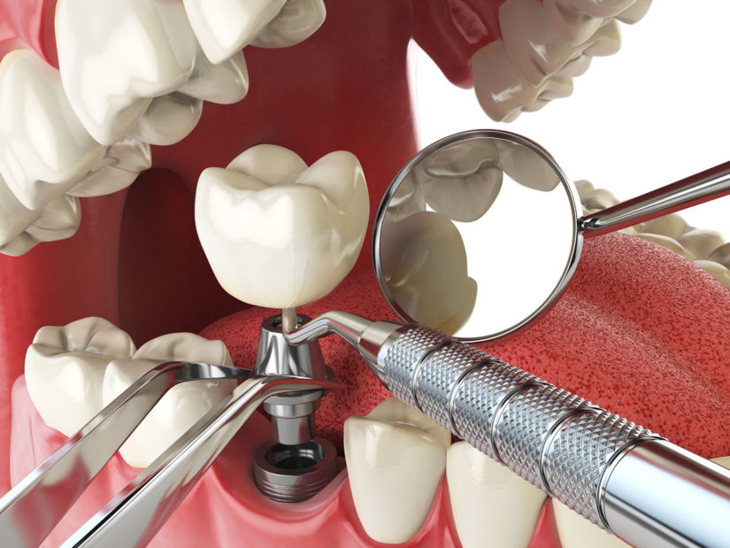 Dental İmplant Nedir